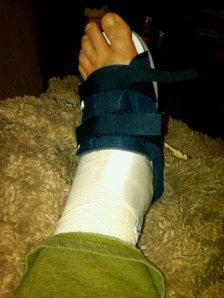 bump after surgery
