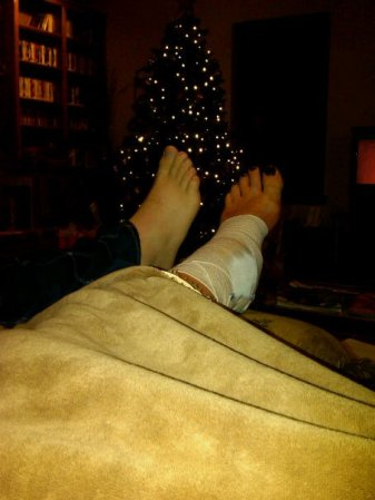 Brady's foot loving on my bump-less foot. I think he was really glad to see it go.